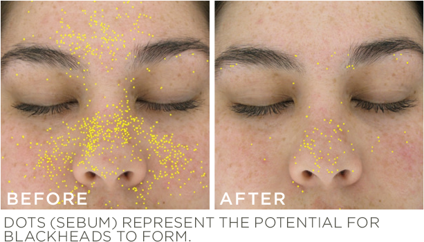 before-after retinol.png